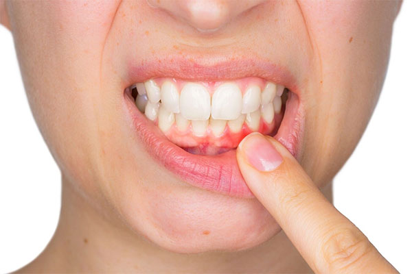 Offering gum disease treatment at our dental clinic