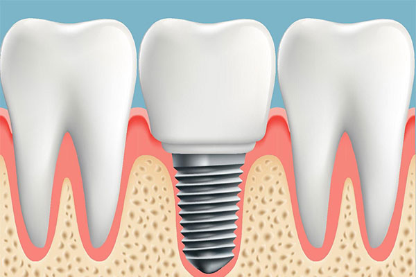 We offer Dental Implants service at our clinic
